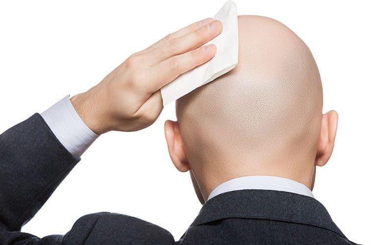 bald greasy head