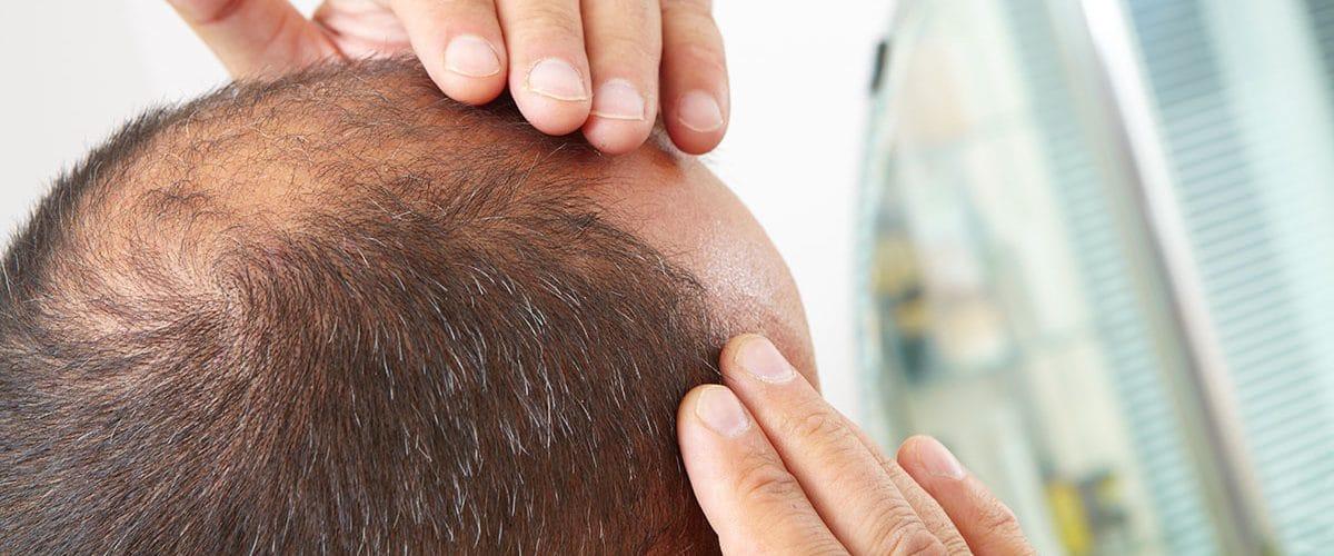 balding man cover